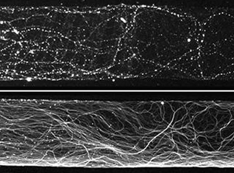 Image shows axons on normal neurons.