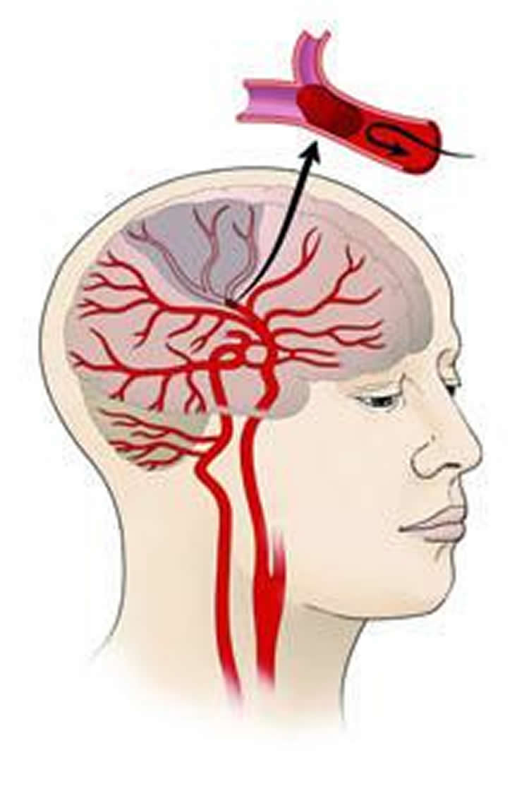 Diagram shows how ischemic strokes occur.