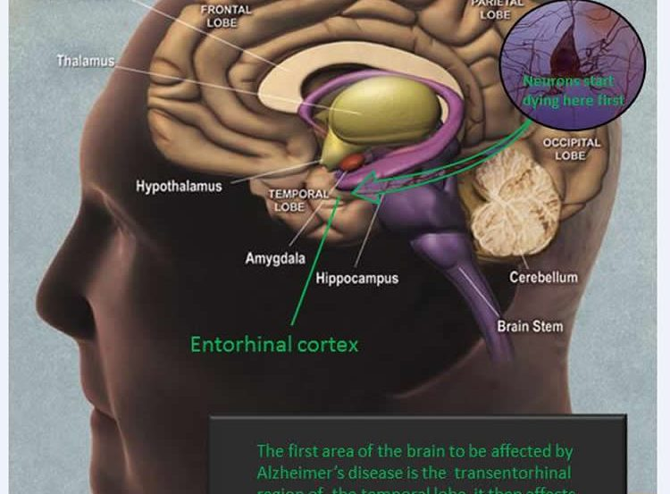 Labelled diagram of the human brain.