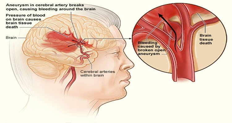 Diagram shows how a stroke affects the brain.