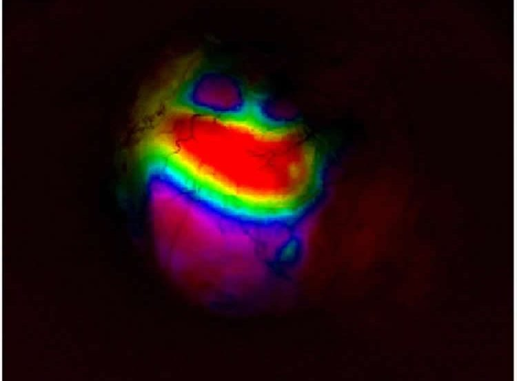Image shows a map of a mouse cortex.