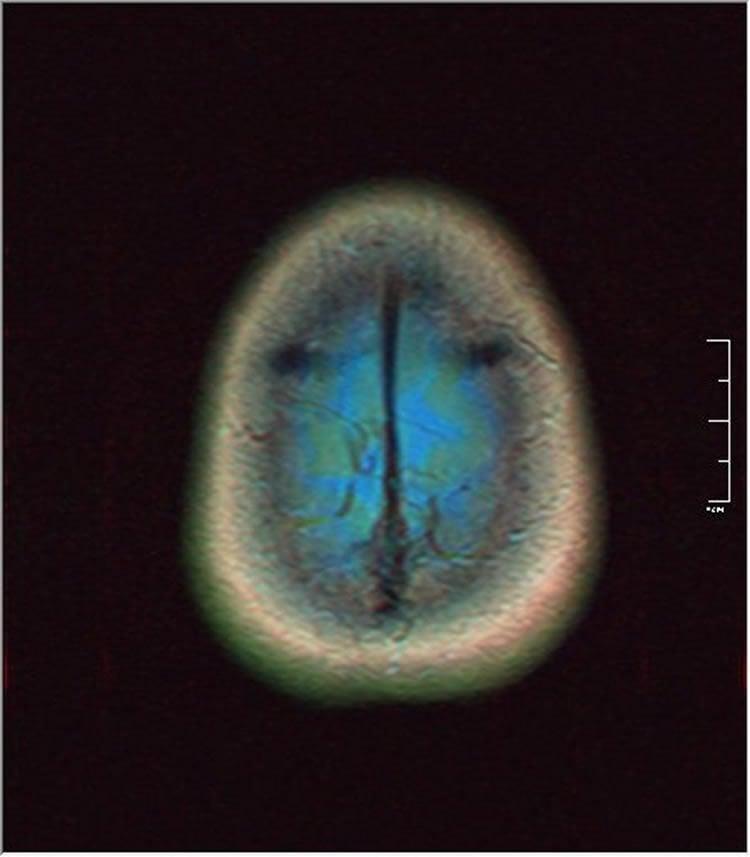 Image shows brain scan of glioma.