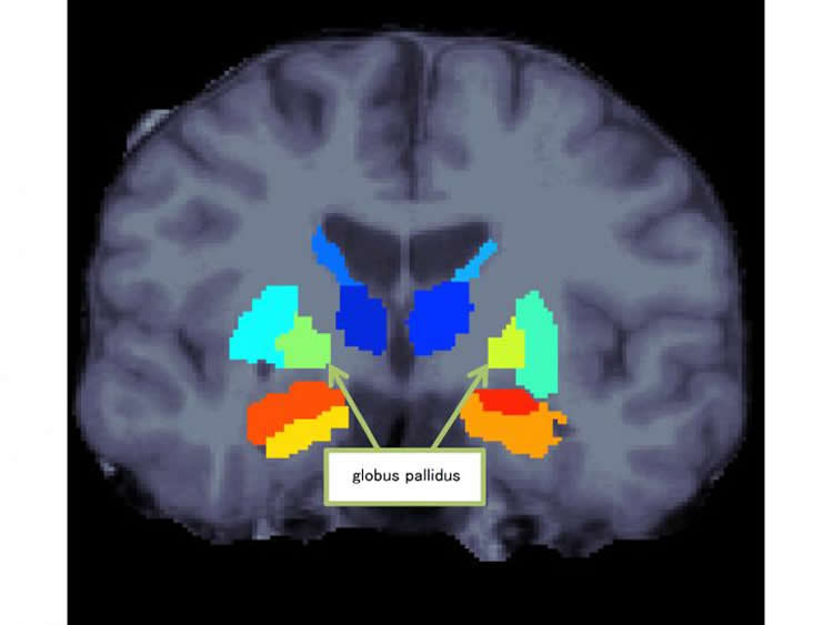 Image shows a brain scan with the globus pallidus highlighted.