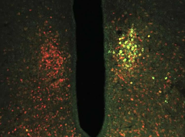 Image shows a TRPV1 ion channel coupled with ferritin.