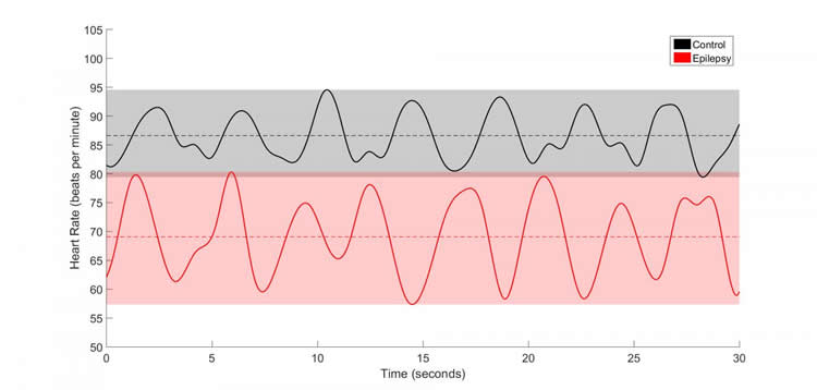 Image shows two heart rate charts.