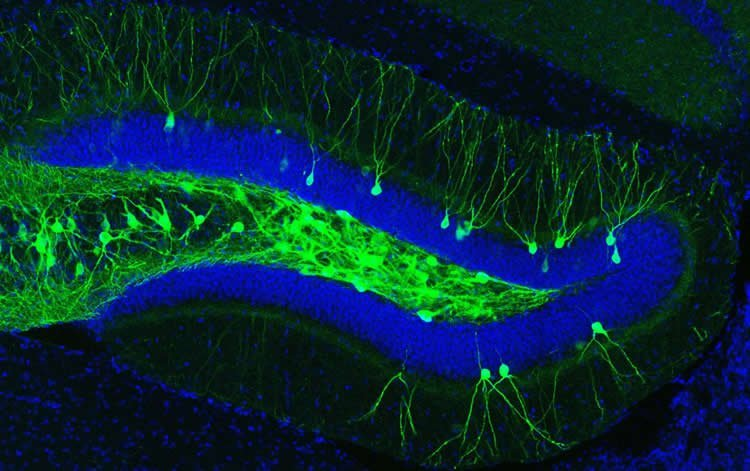 Image shows hippocampal cells.