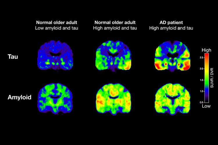 Image shows brain scans with Tau and AB highlighted.