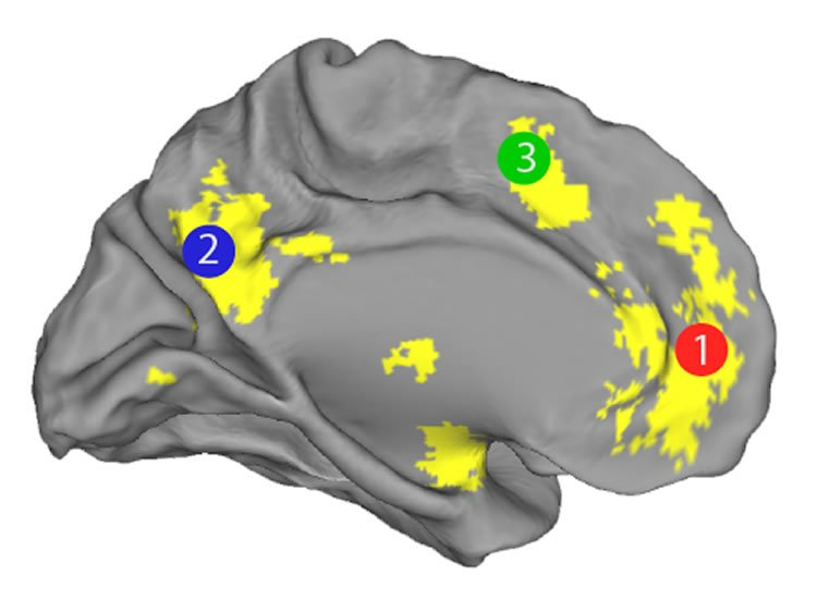 Image of a brain with the PFC highlighted.
