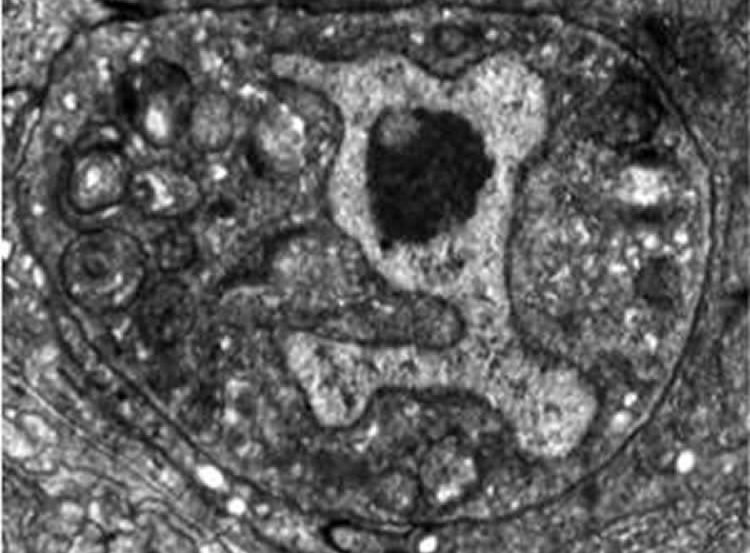 Image shows a dying worm linker cell.