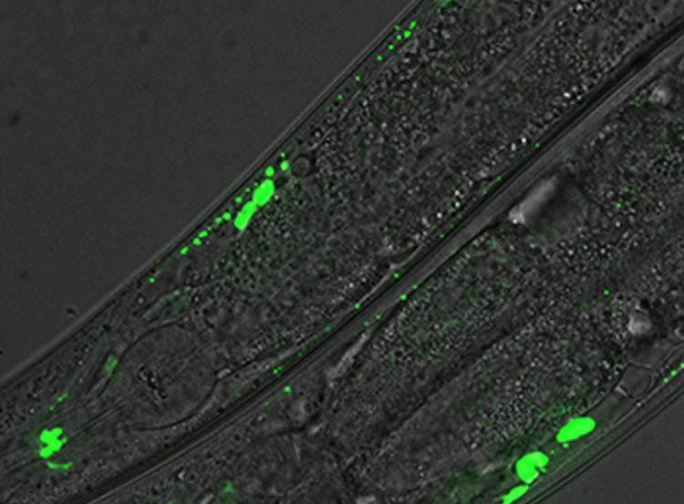 Image shows C.elegans neurons.
