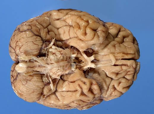 Image shows the brain of a 96 year old Alzheimer's patient.