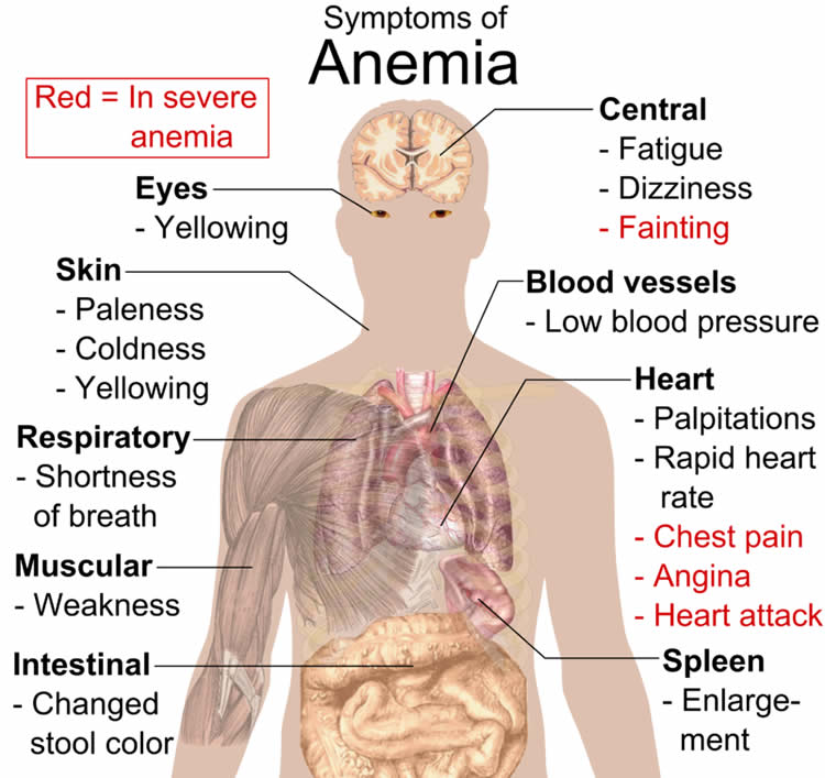 Image shows how anemia affects the body.
