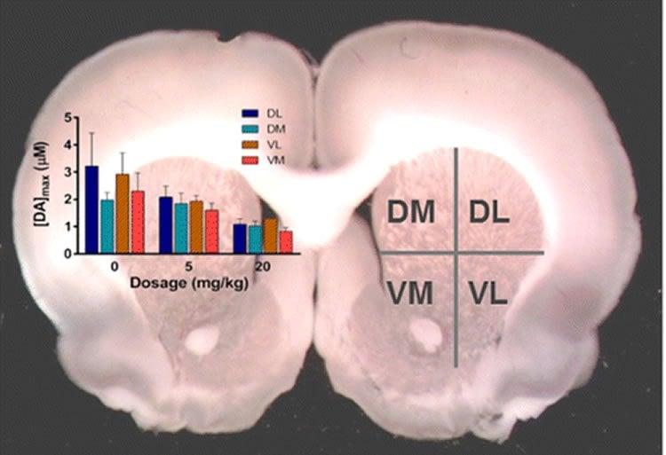 Image shows a rat brain.