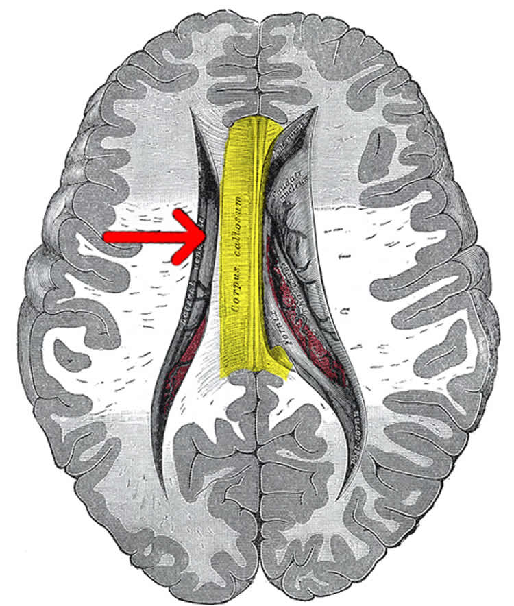 Image shows the location of the corpus callosum in the brain.