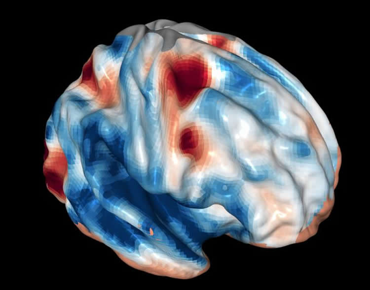 Image shows a brain scan taken from an fMRI.