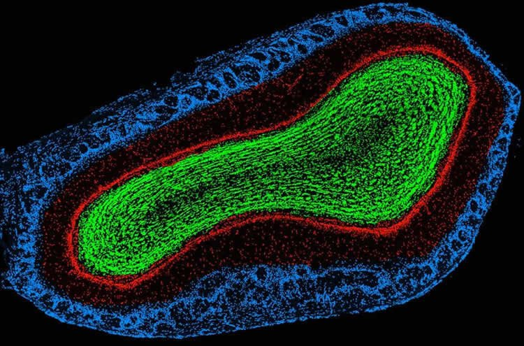 Image shows the olfactory bulb of a mouse.