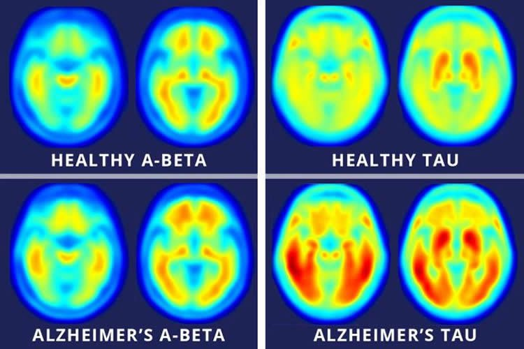 Image shows brain scans that highlight ab and tau progression in alzheimer's.