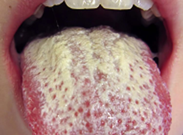 Photo of a person with an oral Candida infection.