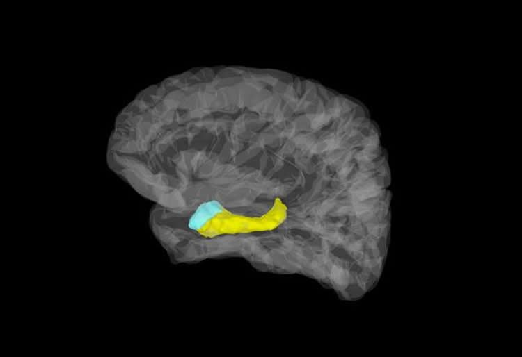 Image shows the location of the hippocampus and amygdala.