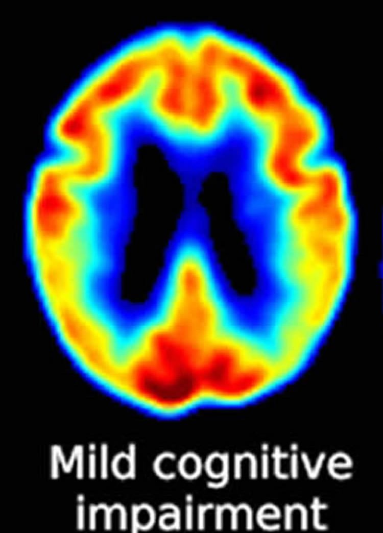 Image shows a brain scan of a person with MCI.