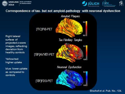 PET scan images of tau in the brains of alzheimer's patients.