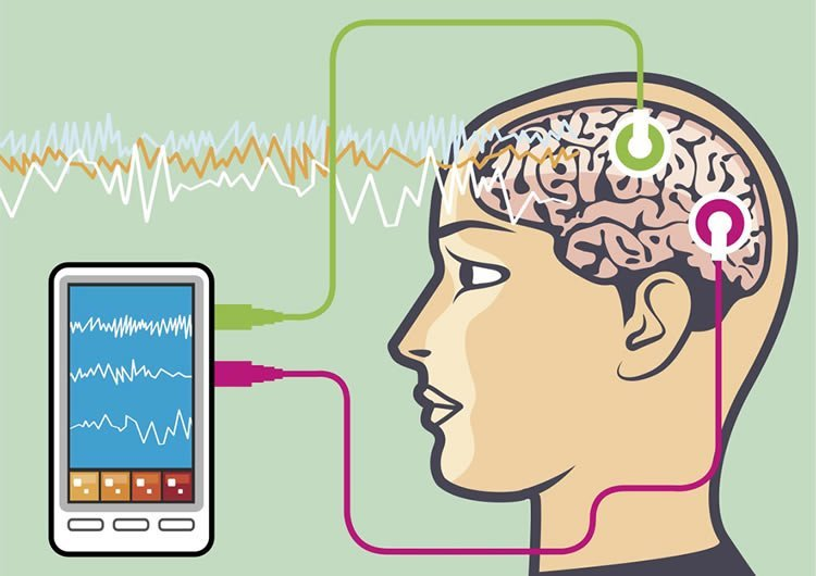 Are EEG Neurofeedback Benefits Due to Placebo Effects?