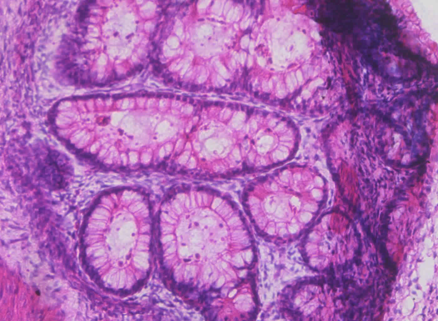 Image shows a cross section from a teratoma.