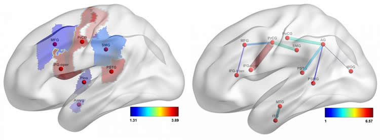 Image shows two images of a brain.
