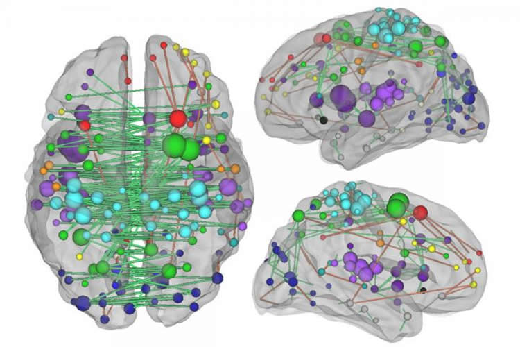 Image shows a brain with dots and lines.