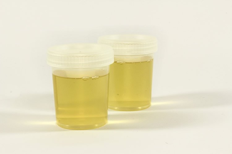 Photo of a urine sample.