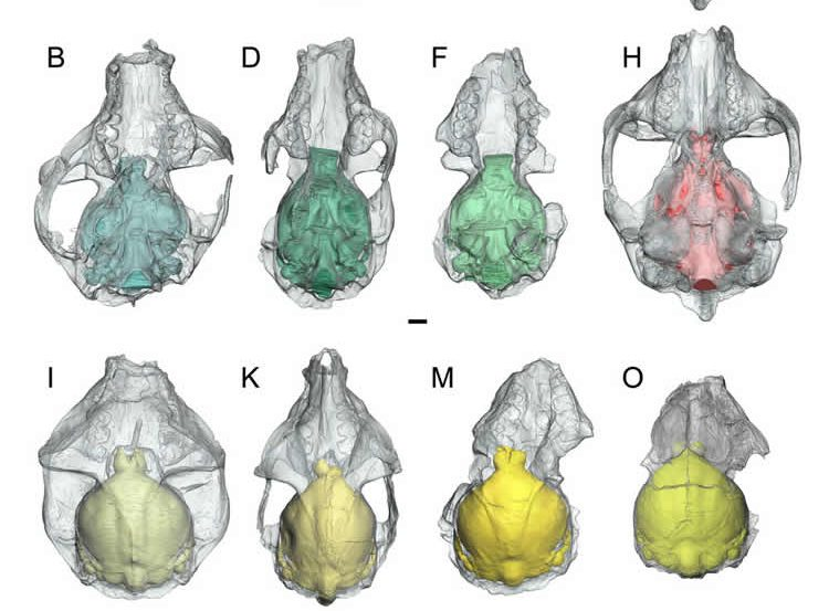 Image shows different views of the brain.