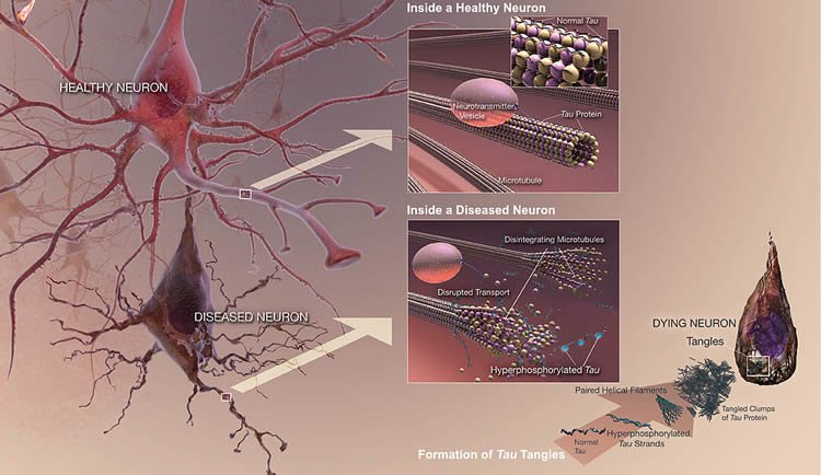 Image shows how tau affects the brain.