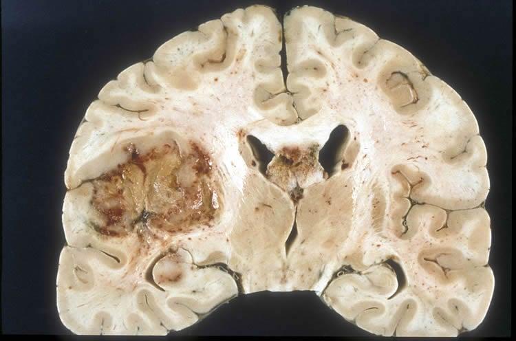Image shows a brain slice with a glioblastoma tumor.