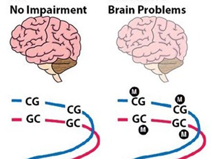 Image shows 2 brains.