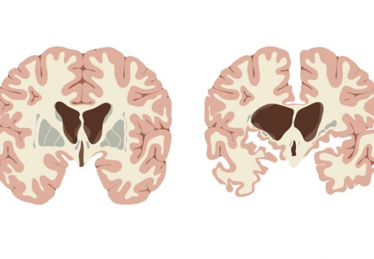 Image shows a brain slice from a huntington's patient.