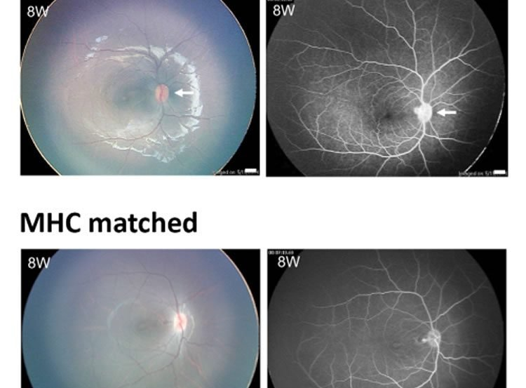 Image shows retinal cells.