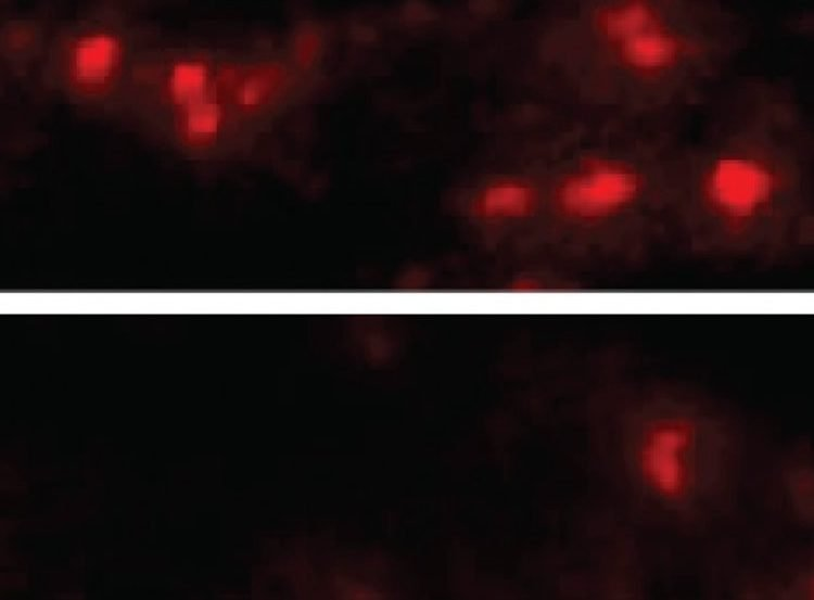 Image shows α-synuclein aggregates in the brain cells of mice with (top) and without (bottom) the LAG3 protein.