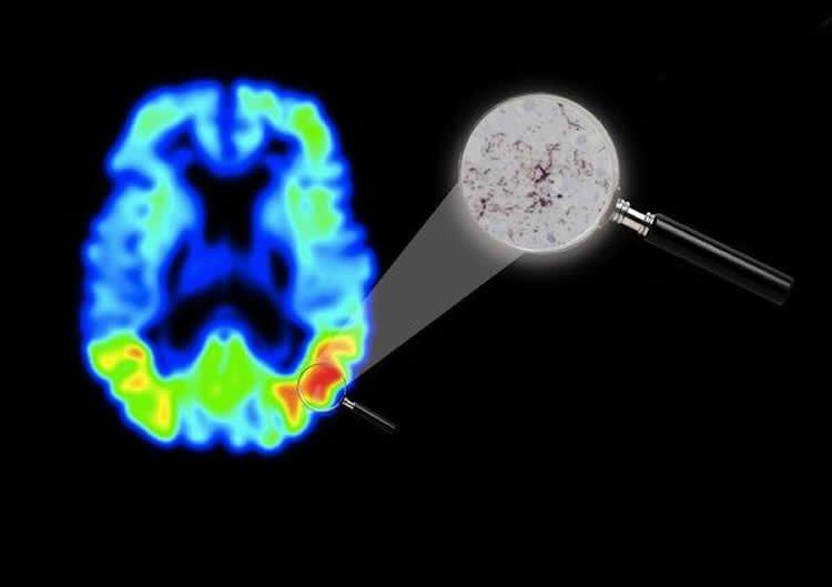 Image shows a PET brain scan of an Alzheimer's patient.