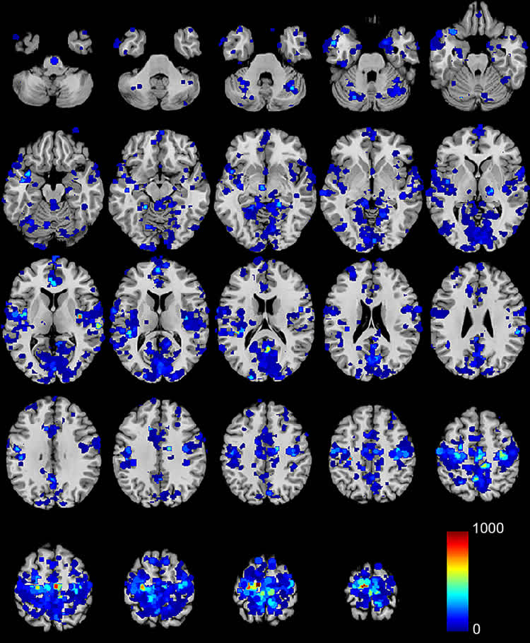 Looking Into the Brains of Habitual Short Sleepers