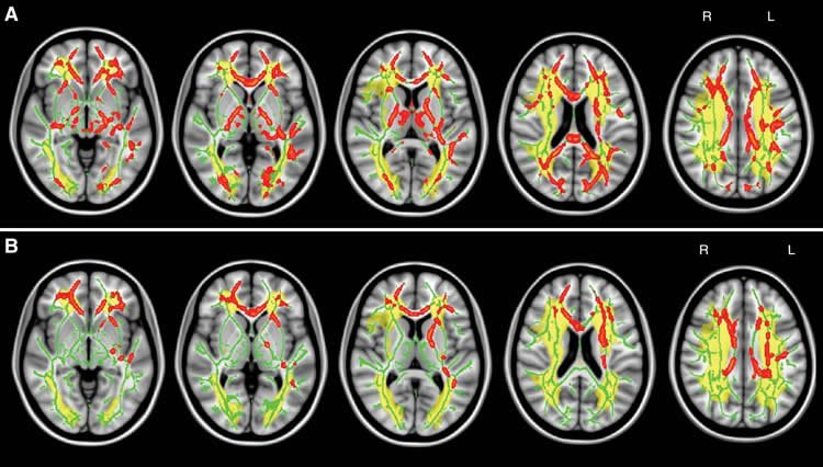 'Traffic Jam' in Brain Linked to Common Cognitive Disorder