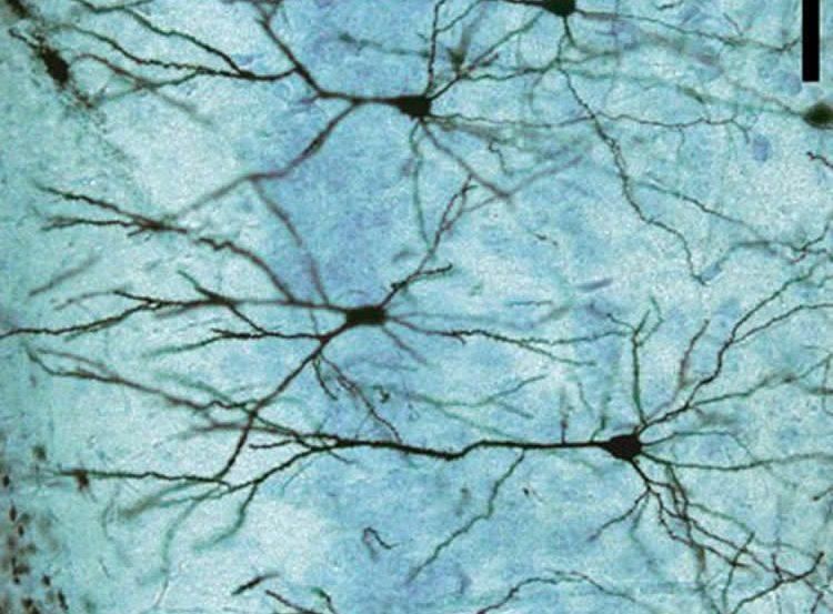 Image shows neuron.