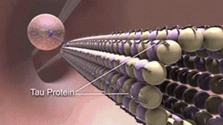 Image shows the tau protein.