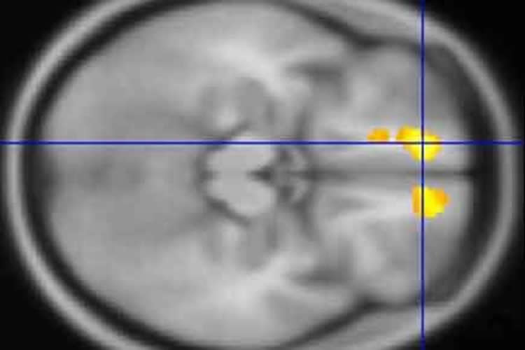 Image shows a brain scan of a person with tourette.