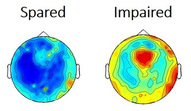 Image shows a diagram of the brain activity during seizures.