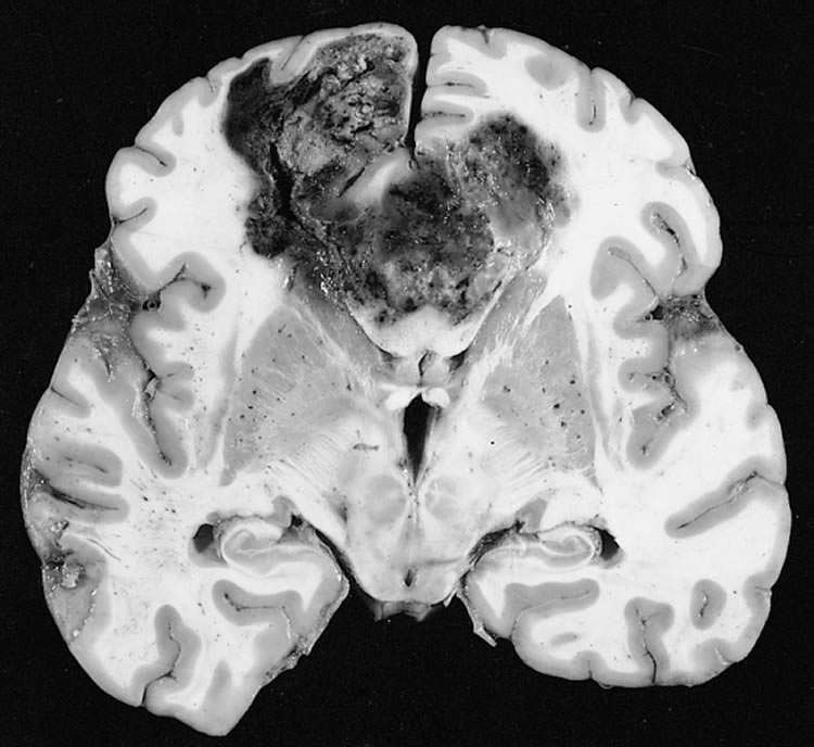 Image shows a brain slice with a GBM.