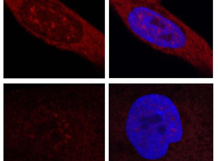 Image shows fibroblasts from patients with Huntington's disease.