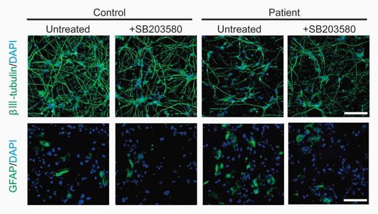 Image shows neuron cultures.