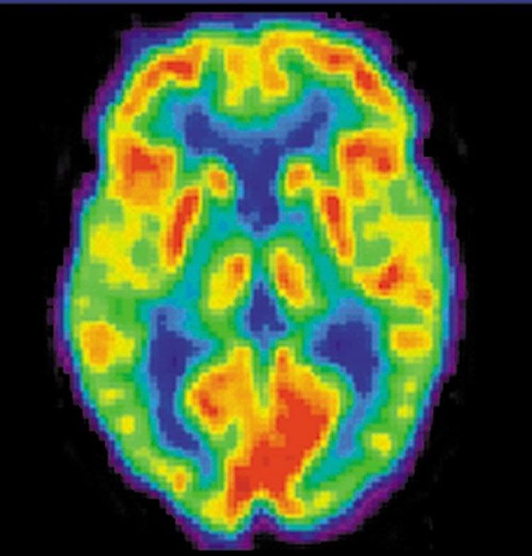 Image shows a PET scan.
