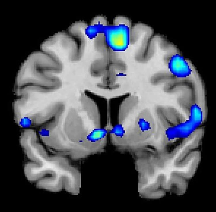 Image shows a brain scan with the nac highlighted.