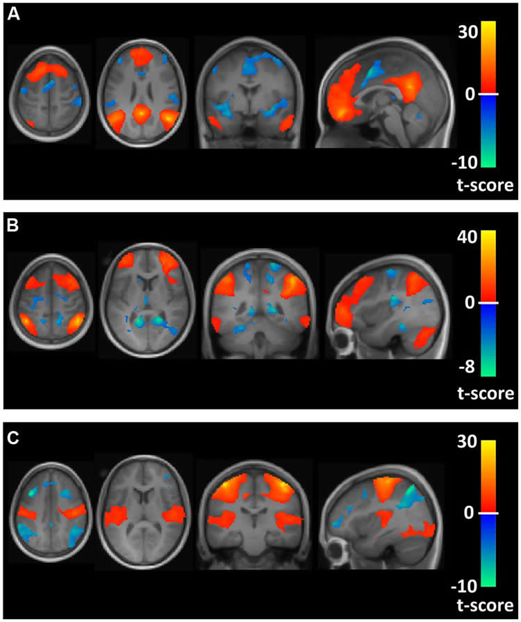 Runners' Brains May Be More Connected
